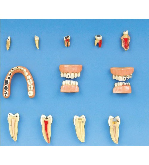 DENTAL DISEASES MODEL