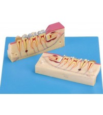 DISSECTED MODEL OF TEETH TISSUE