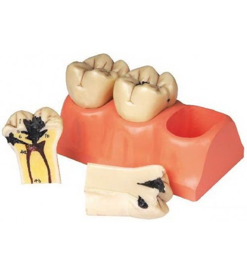 DISSECTED MODEL OF DENTAL CARIES